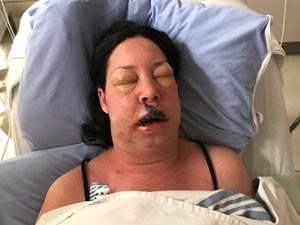 'She's lucky': Alberta woman recovering after losing lip to flesh-eating disease